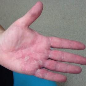 Eczema On The Hand