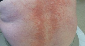 Eczema On The Back