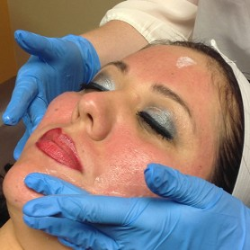 Micro-Needling On The Face