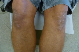 Psoriasis On The Legs