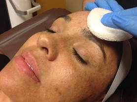 Chemical Peel On The Face