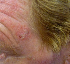 Actinic Keratosis On The Forehead