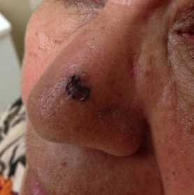 Basal Cell Carcinoma On The Nose