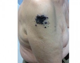 Malignant Melanoma On The Shoulder