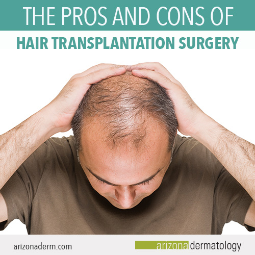The pros and cons of hair transplantation surgery