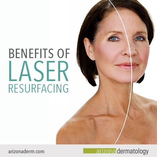 The Benefits of Laser Resurfacing | Arizona Dermatology