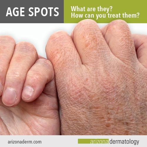 What are age spots? | Arizona Dermatology