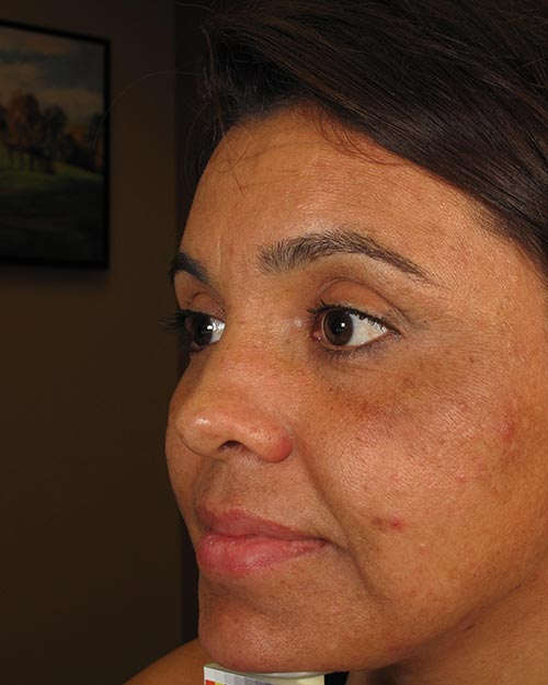 Melasma On the Face