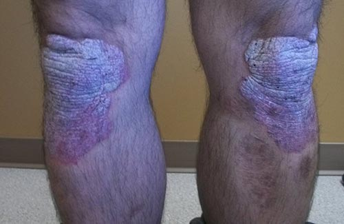 Psoriasis On The Knees