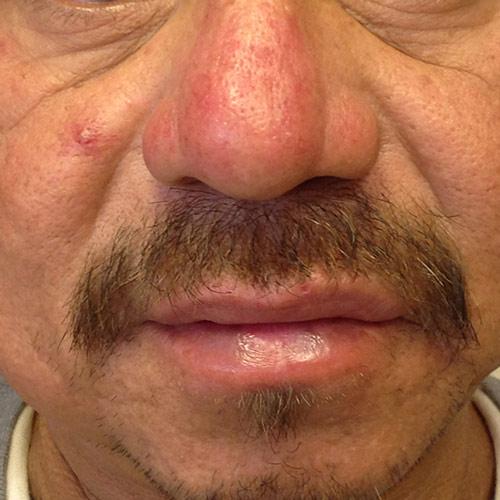 Rosacea Treatments At Arizona Dermatology