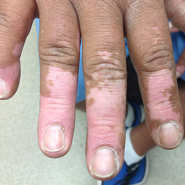 Vitiligo On The Hand