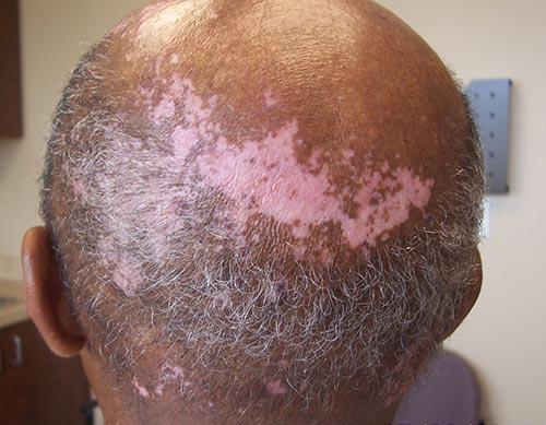 Vitiligo On The Head