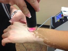 Xtrac Laser On The Arm