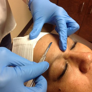 Dermaplaning On The Face