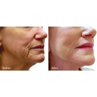 Laser Resurfacing On The Face