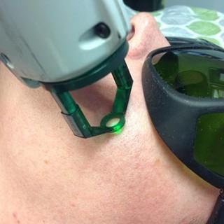Vascular Laser On The Face