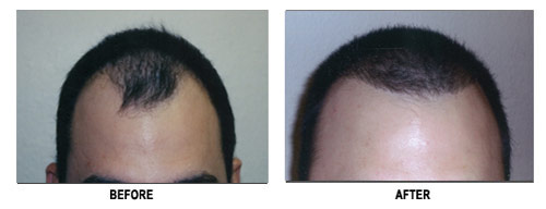 Hair Transplantation Black Hair