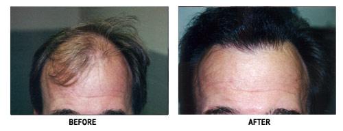 Hair Transplantation Brown Hair