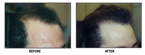 Hair Transplantation Receding Hairline