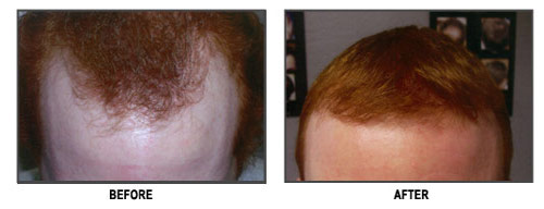 Hair Transplantation Before and After Red Hair