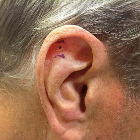 Actinic Keratosis On The Ear