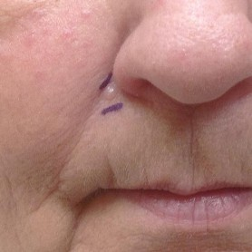 Basal Cell Carcinoma On The Face
