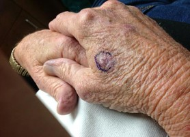 Squamous Cell Carcinoma On The Hand
