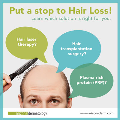 Treatments for Hair Loss