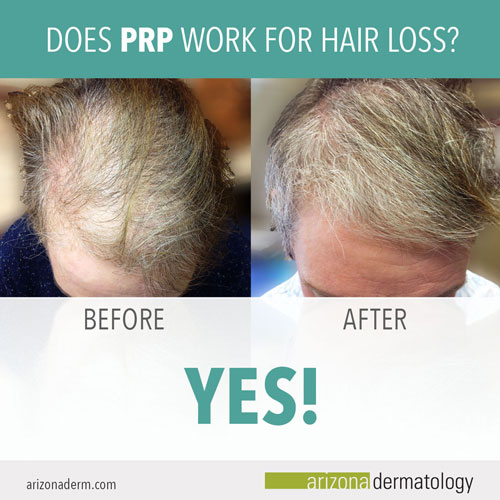 PRP hair restoration results