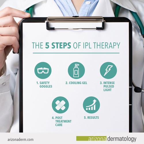 The 5 steps of IPL therapy