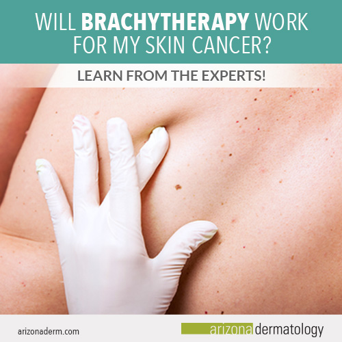 Will brachytherapy work for my skin cancer?