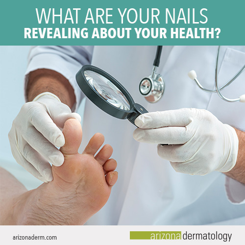 What do my nails say about my health | Arizona Dermatology