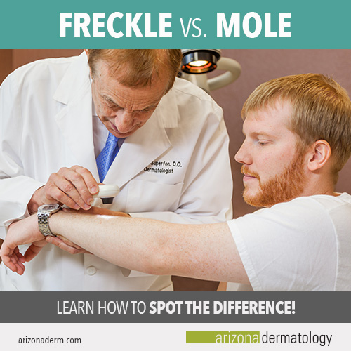 The difference between a freckle and a mole