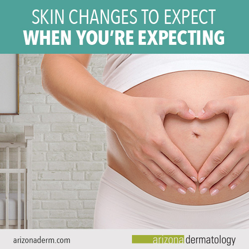 Skin changes to expect when you're pregnant from Arizona Dermatology.