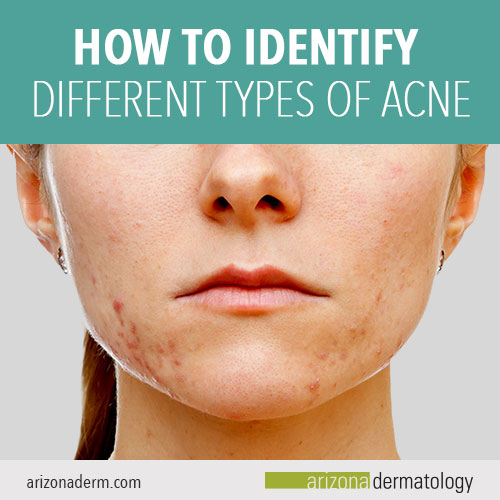 How to Identify Different Types of Acne | Arizona Dermatology