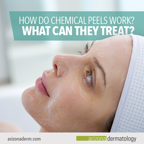 How do Chemical Peels Work? What Can They Treat? | Arizona Dermatology