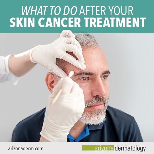 what to do after skin cancer treatment
